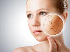 Domowe sposoby na suchą skórę